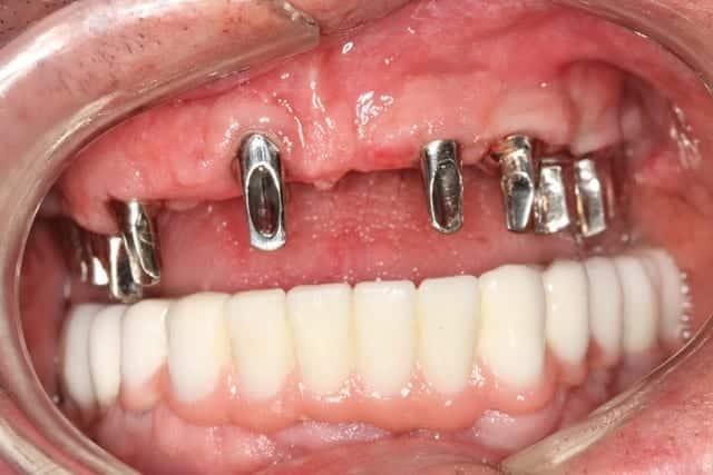 Post Dental Restoration Gums and bottom teeth