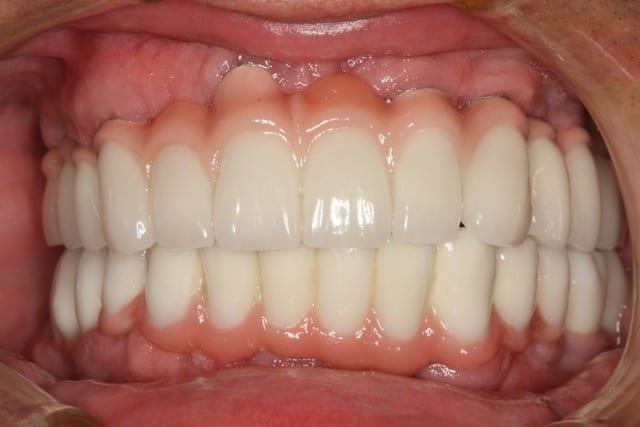 Dental Restoration Teeth