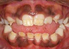 amelogenesis imperfecta 1