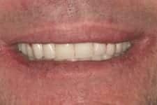 jw gum disease temporary teeth