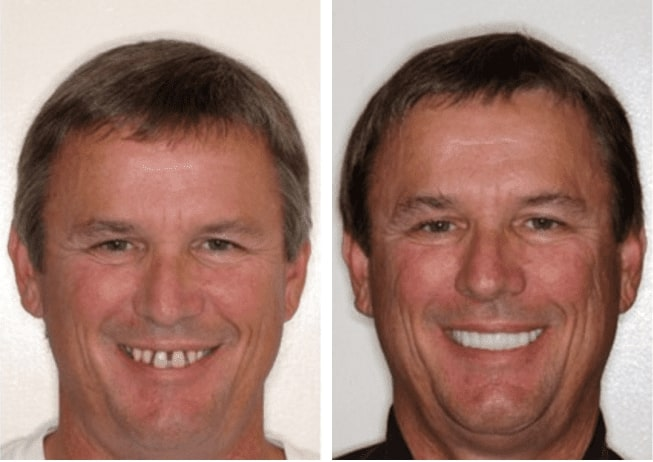 Dental Implants before and after headshots