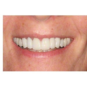 Smile Makeover Patient